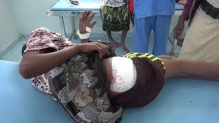 إصابة  طفل برصاص مليشيات الحوثي في الجبلية