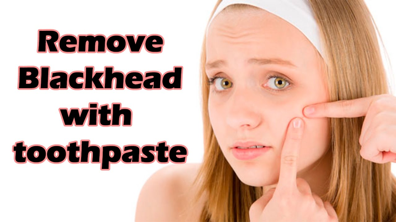 How to remove blackheads with toothpaste
