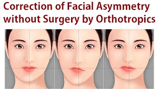 Correction of Facial Asymmetry Without Oral Surgery Using Orthotropics Method By Dr Mike Mew
