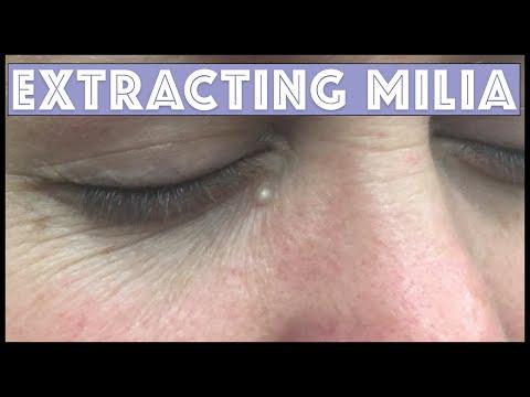 Extracting Milia Under The Eye