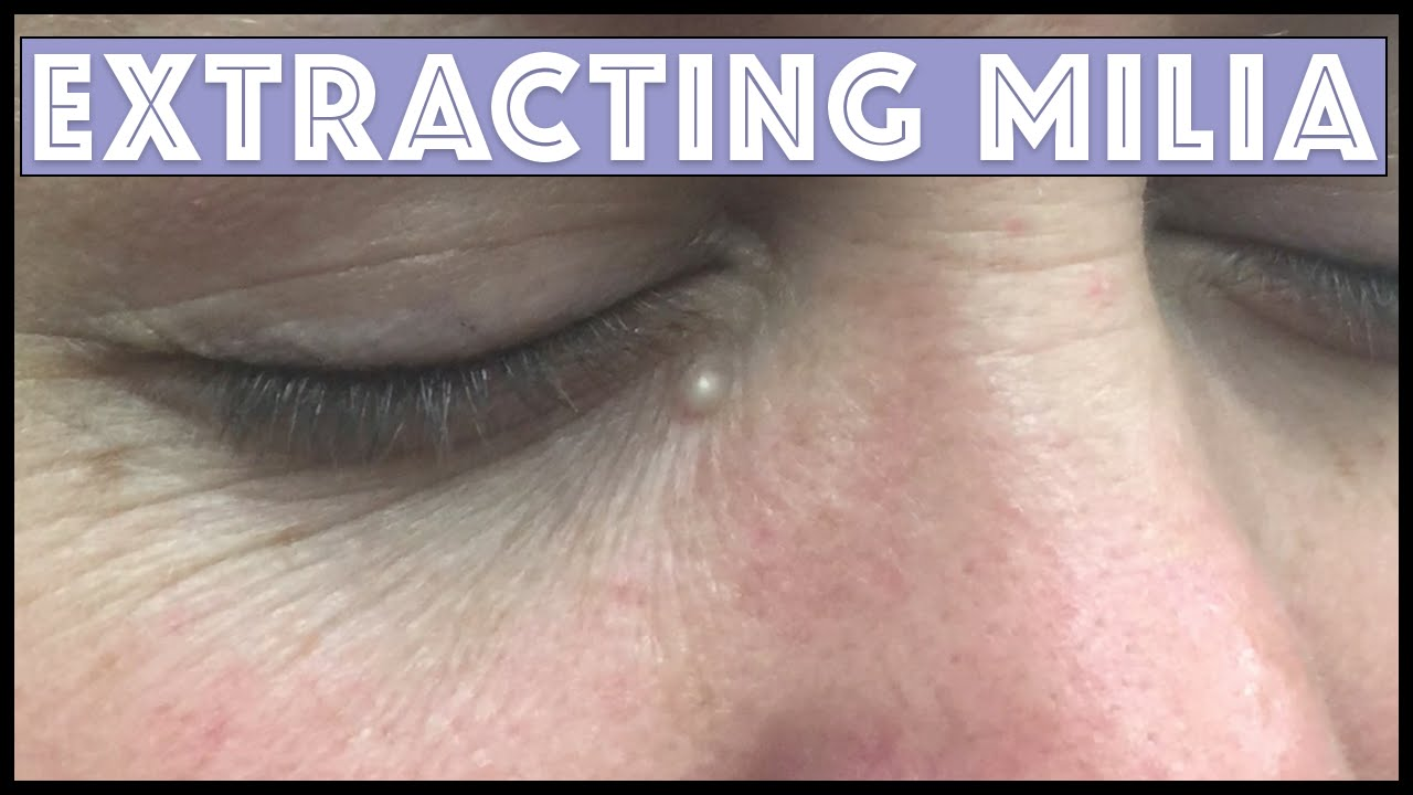 Extracting A Milia Under The Eye Youtube