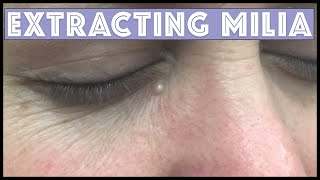 Extracting a Milia under the eye