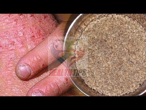 skin allergy treatment in hindi – चुटकियों में skin allergy को दूर करने का जबरदस्त का घरेलू नुस्खा