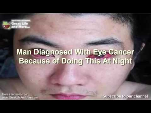 Be careful eye cancer virus spreading