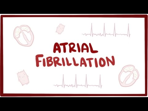 Atrial fibrillation (A-fib, AF) - causes, symptoms, treatment & pathology