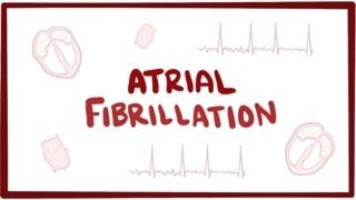 Video Atrial fibrillation (A-fib, AF) - causes, symptoms, treatment & pathology download MP3, 3GP, MP4, WEBM, AVI, FLV November 2017