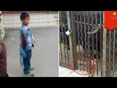 ขนมของว่างของหมี เด็กจีนเสียแขนขวา