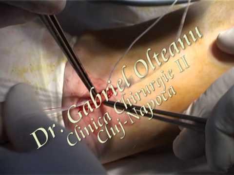 varicoză cursuri de chirurgie