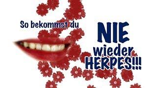 Herpes sofort weg! Das BESTE Mittel gegen Herpes! Endlich schöne Lippen!