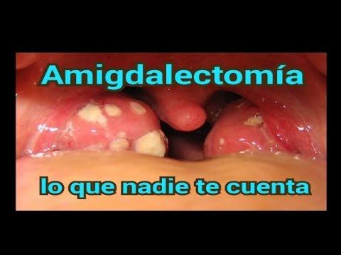 dieta despues de amigdalectomia