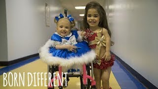 Disabled Sisters Are Queens Of Beauty Pageant | BORN DIFFERENT thumbnail