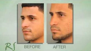 Rhinoplasty Experience of Dr. Nassif's Patient Max
