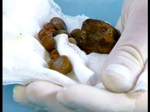 Как избавиться от камней в почках: возможные варианты