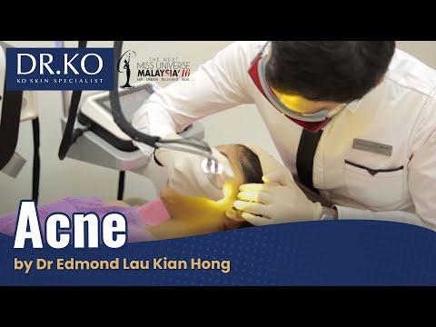 Acne by Dr Edmond Lau Kian Hong (Ko Skin Specialist)