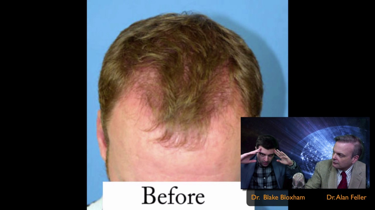 Hair Transplant Play By 3 Feller And Bloxham Great Neck Long Island Ny