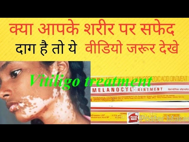 सफेद दागो को गायब करे सिर्फ 15 दिनों में (Vitiligo treatment)(MELANOCYL-Ointment review in Hindi