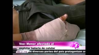 TVC TN5 Estelar-  Batería de celular le explota en la mano a un menor