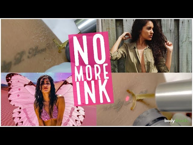 Tattoo Removal Boynton Beach | No More Ink | Melissa Carby | Body Details