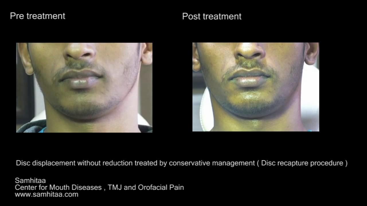 closed lock jaw treatment
