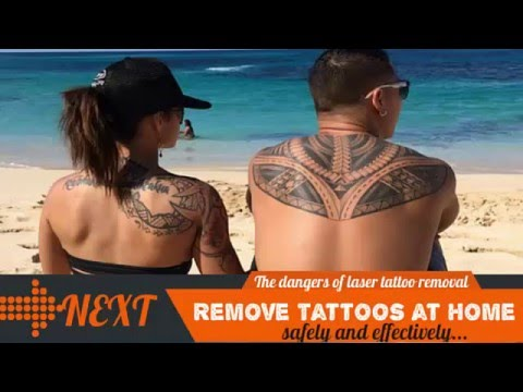The Dangers of  Laser Tattoo Removal Surgery