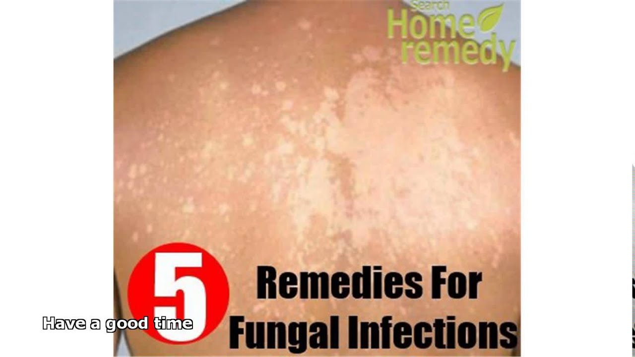 Natural Treatment For Skin Yeast Infection