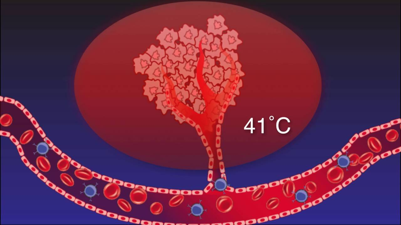 How Hyperthermia jumpstarts the Immune Modulation Effect to Fight Cancer