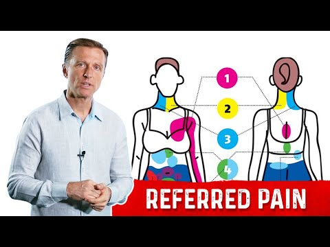 What is Referred Pain? INTERESTING