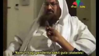 Хиджама. Как делать Хиджаму. Часть 6.