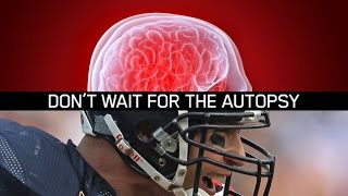 What Is CTE?  The Unspoken Truth About American Football