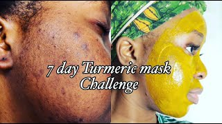 I TRIED TURMERIC MASK FOR 7DAYS MY HONEST REVIEW ACNE AND HYPERPIGMENTATION Just Siphosami