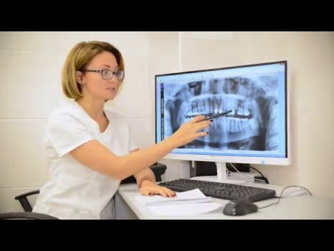 Как читаются рентгеновские снимки