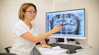 видео Как определить перелом ребра по рентгеновскому снимку: расшифровка рентгена