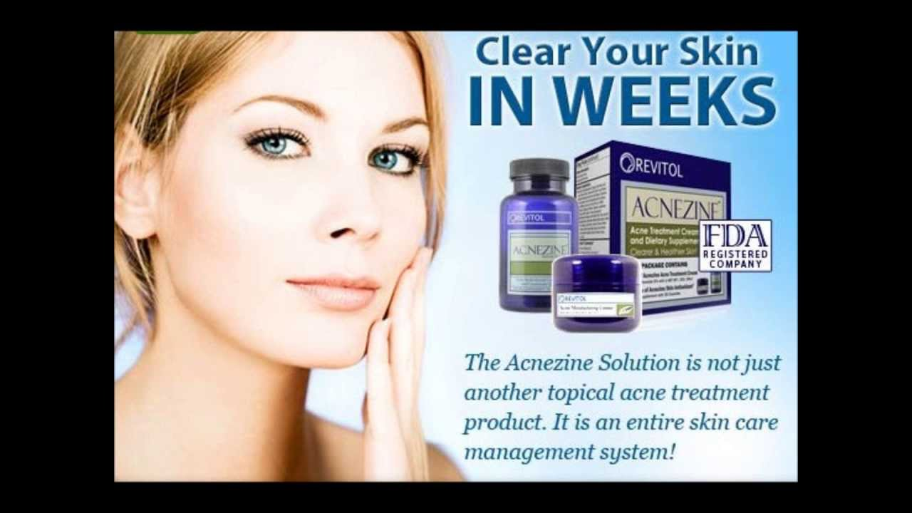 Acnezine Acne Skin Care Treatment Reviews Side Effects Pimple
