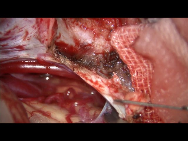 Microsurgical resection of unruptured cerebellar arteriovenous malformation presenting with...