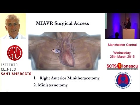 """Mattia Galuber - 2015 SCTS meeting """"Mini-AVR Right Anterior Thoracotomy"""""""