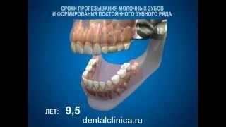 Стоматология лечение зубов имплантация протезирование в Москве Санкт-Петербурге европейское качество(, 2014-03-29T14:24:40.000Z)