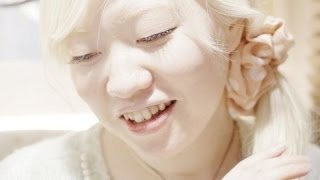 美しすぎるアルビノの日本人 Beautiful albino Japanese アルビノ 検索動画 13