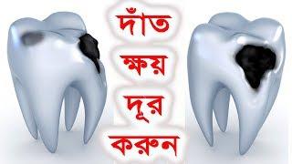দাঁত কে ভালোবাসেন নিশ্চয়ই তবে দেখুন দাঁত ক্ষয় রোধের চার উপায়    Four ways to prevent tooth decay