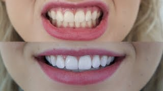 HOW TO GET WHITE TEETH | professional dentist teeth whitening