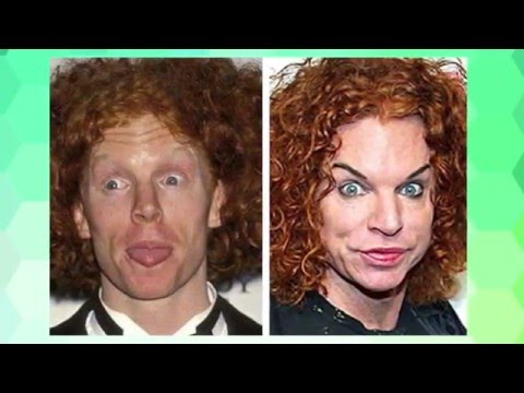 Celebrity Plastic Surgery - Gone Too Far - Pete Burns ...