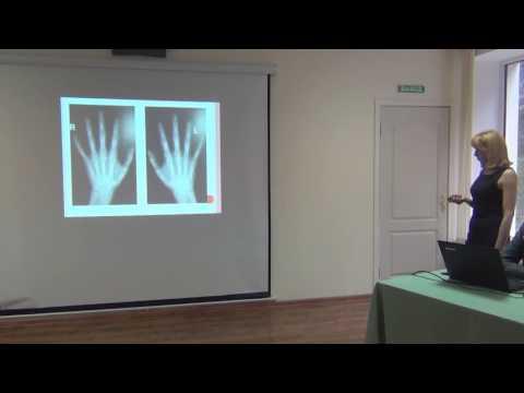 Реактивный артрит (артропатия), лечение, причины, симптомы