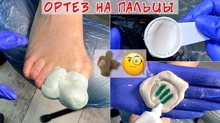 Искривление пальцев на ногах Изготовление ортеза на палец ноги