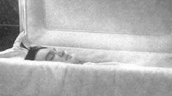 Todesursache von Elvis Presley 16.8.1977