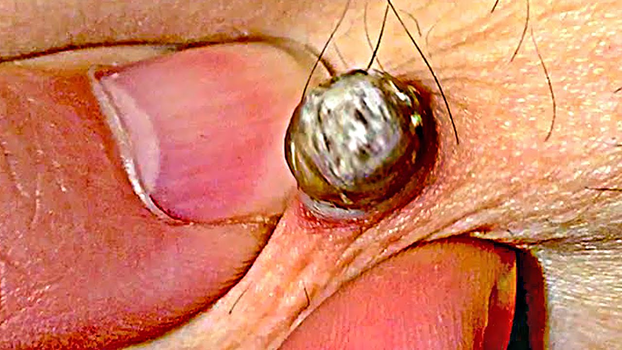What is a Blackhead, Open Comedones & Dilated Pores - YouTube