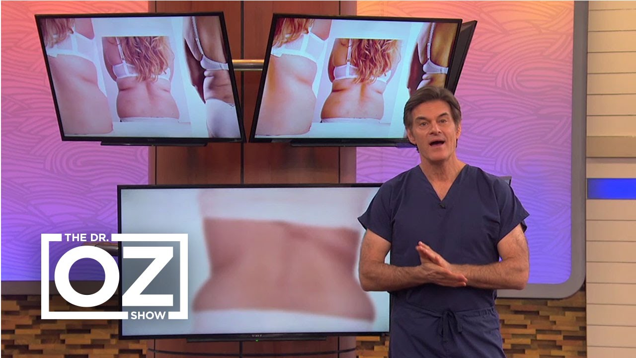 6b6dfd98f63 Dr. Oz's Fix for Back Fat in Women - YouTube