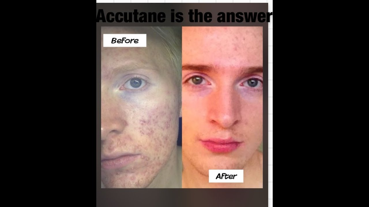 Post Accutane Side effects & improvements - YouTube