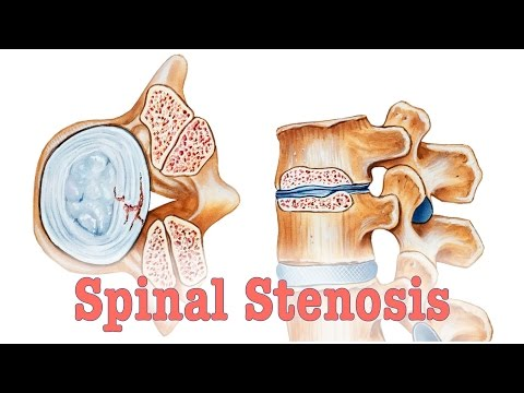 Spinal Stenosis- Surgery vs. Chiropractic Care
