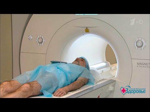 Здоровье. Поджелудочная железа: ранняя диагностика рака.   18.11.2018