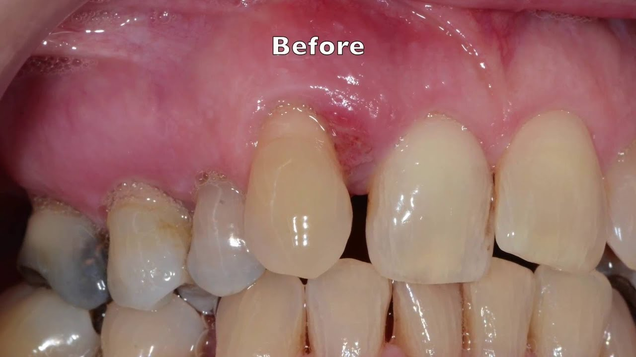 Treatment Of Severe Gum Periodontal Disease Youtube