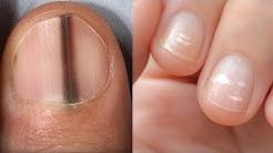 Hast du diese Markierung auf den Nägeln?